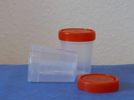 Vizeletes pohár, csavaros tetővel, 120 ml, steril (250 db/doboz)